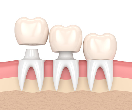 Dental crowns at Alan J. Binstock DDS Family and Cosmetic Dentistry