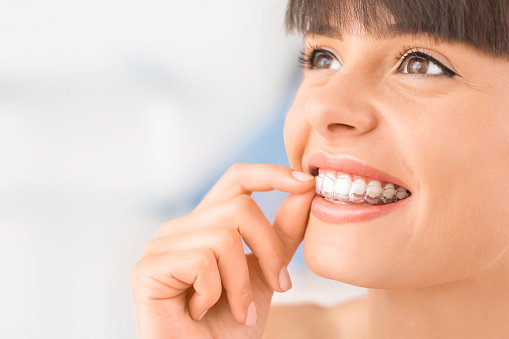 Clear Invisalign aligners at Alan J. Binstock DDS Family and Cosmetic Dentistry