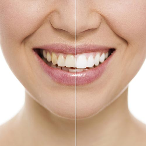 Teeth whitening treatment at Alan J. Binstock DDS Family and Cosmetic Dentistry
