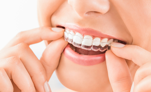 Bruxism and mouthguards at Alan J. Binstock DDS Family and Cosmetic Dentistry